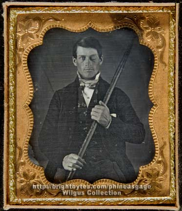 Phineas Gage holding the tamping iron that shot through his brain.