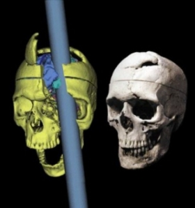 Left: Reconstruction of the trajectory of the tamping iron. Right: Gage's skull.